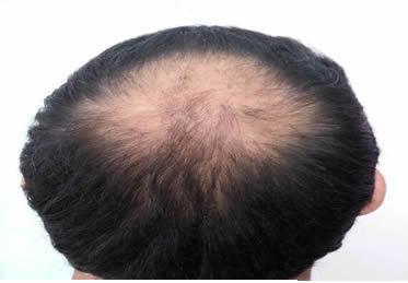 doğal saç dökülmesi.
