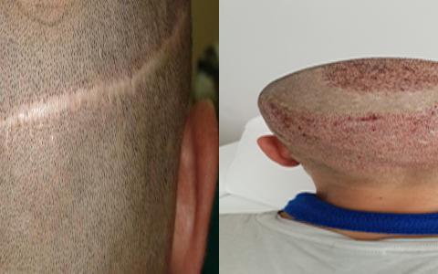 FUE ve FUT Saç Ekimi İşlemleri