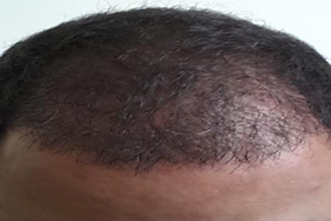 saç bakımı